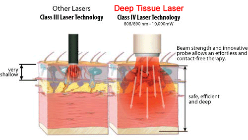 Class IV Deep Tissue Laser Therapy penetrates deep into tissues for improved healing and pain relief