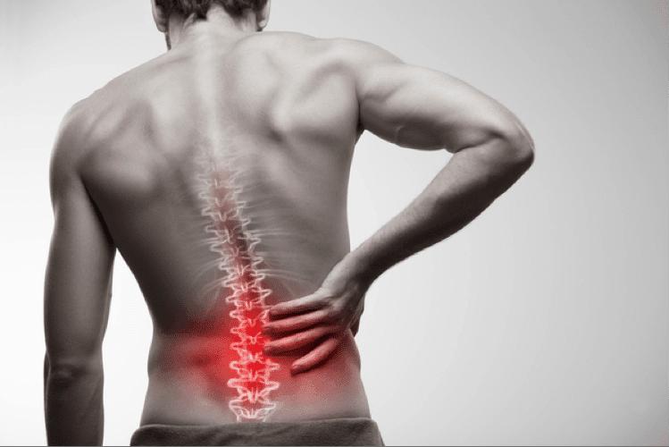 What causes Sciatic / Sciatica pain?